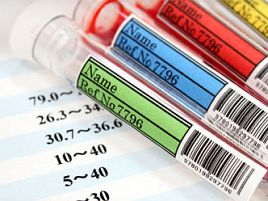 HbA1c、血糖値以外にもいろいろ検査されちゃうけど…何?