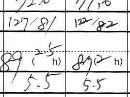 10月の検査(結果発表)。HbA1cは5.5、血糖値は87で横ばい